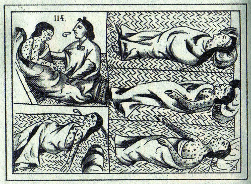천연두로 고통받는 원주민