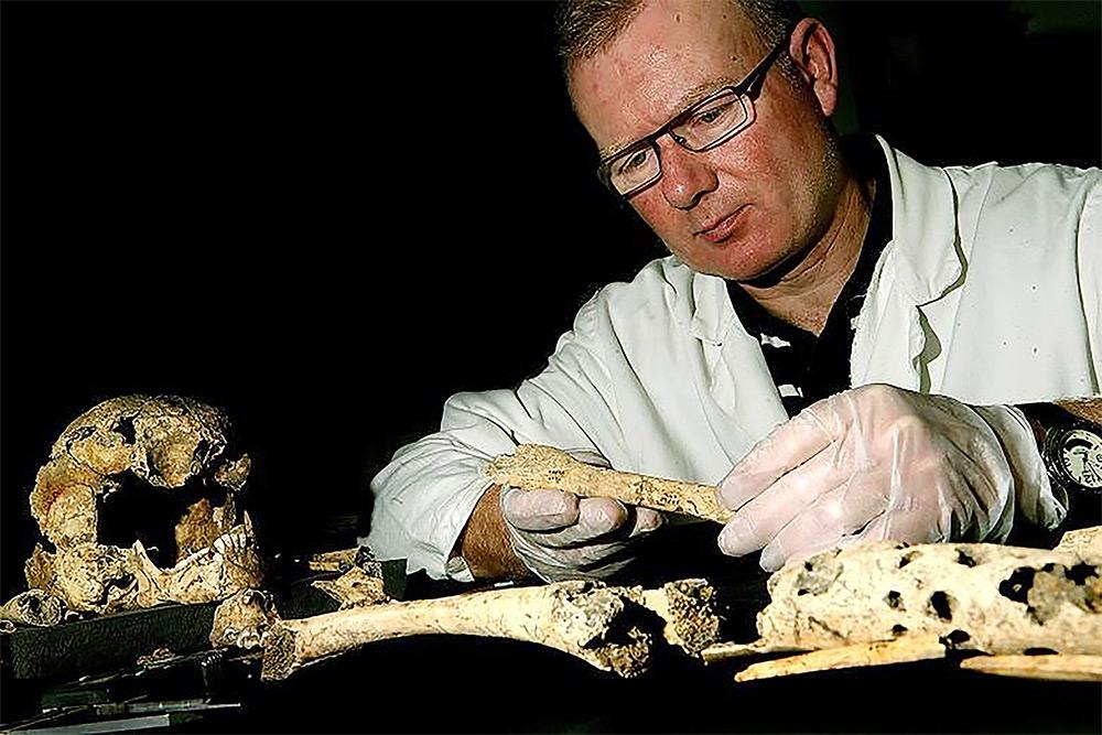 매독의 흔적이 있는 유골을 조사하는 학자 돈 워커